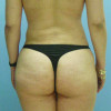 After Liposculpture Cosmetic Surgery Cancun